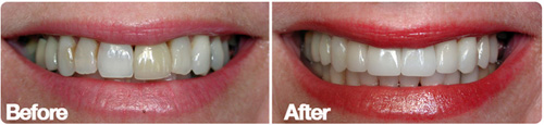 San Diego Porcelain Veneers Color correction