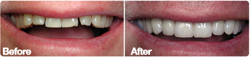 San Diego Porcelain Veneers Space Closure