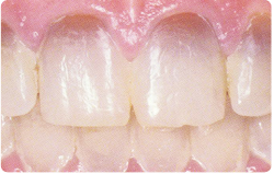 San Diego Porcelain Veneers Tetracycline Stains